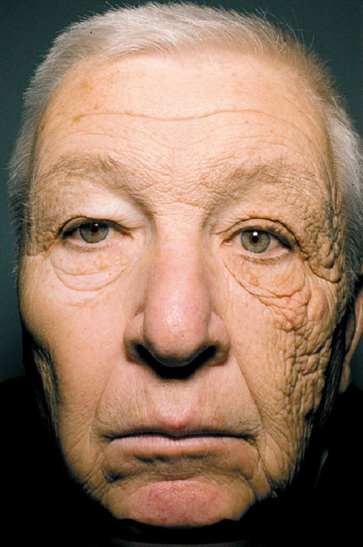 28 Jahre lang nur eine Gesichtshälfte sonnen 28years_sunononeside