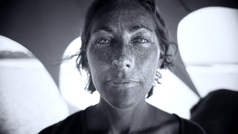 So sieht deine Haut durch UV-Strahlen aus