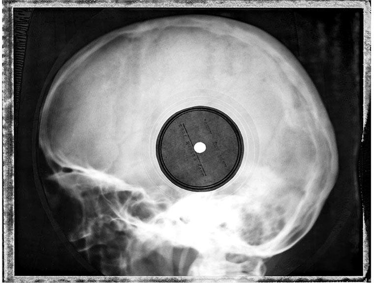 Schallplatten aus Röntgen-Aufnahmen X-ray_vinyls_01