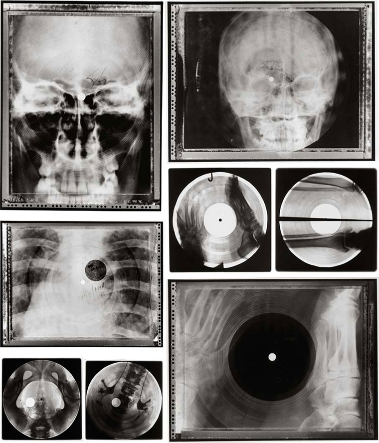 Schallplatten aus Röntgen-Aufnahmen X-ray_vinyls_02