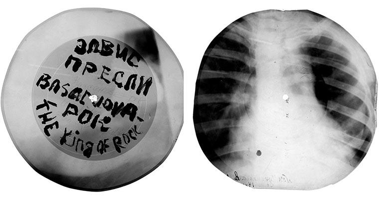 Schallplatten aus Röntgen-Aufnahmen X-ray_vinyls_03