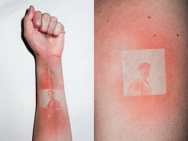 Sonnenbrand-Foto-Tattoos UV-burn-pics_01
