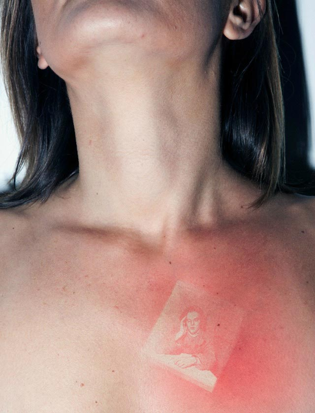 Sonnenbrand-Foto-Tattoos UV-burn-pics_02