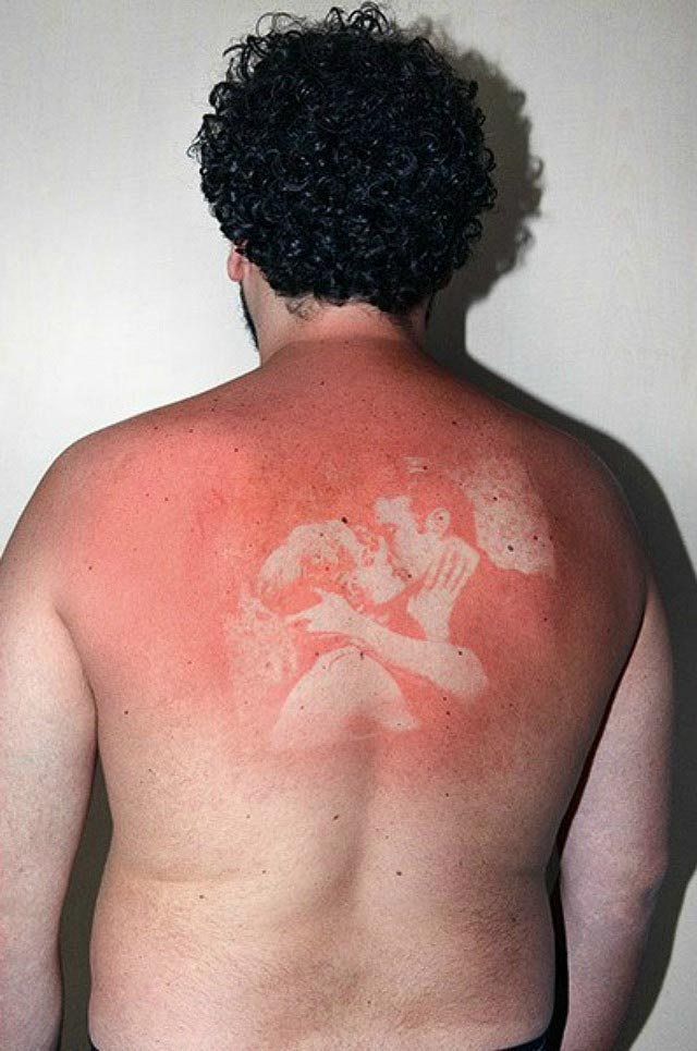 Sonnenbrand-Foto-Tattoos UV-burn-pics_03