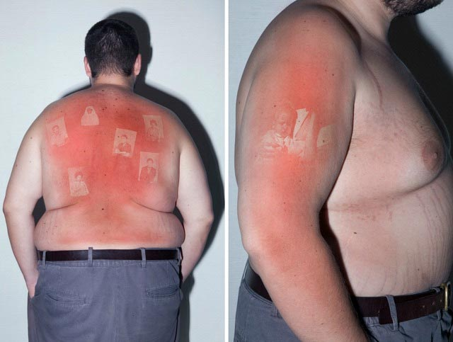 Sonnenbrand-Foto-Tattoos UV-burn-pics_04