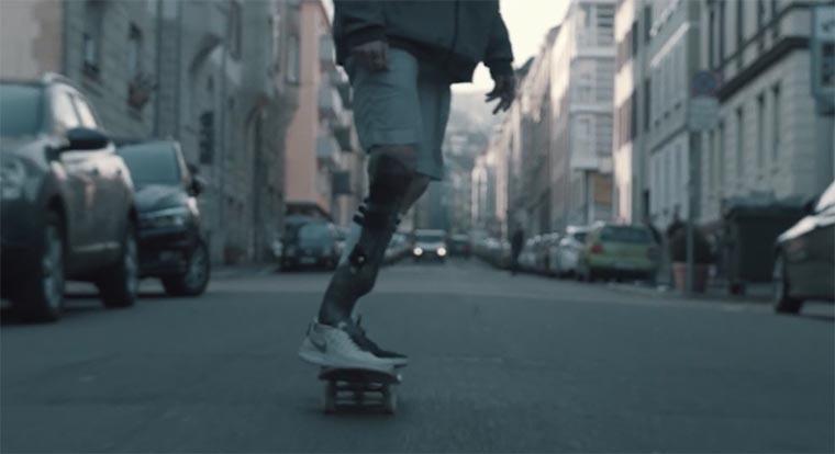 Skateboarden mit Beinprothese