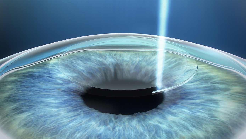 Mein brillenloses Leben nach der Augen-Operation SMILE-Eyes-augenlasern_02