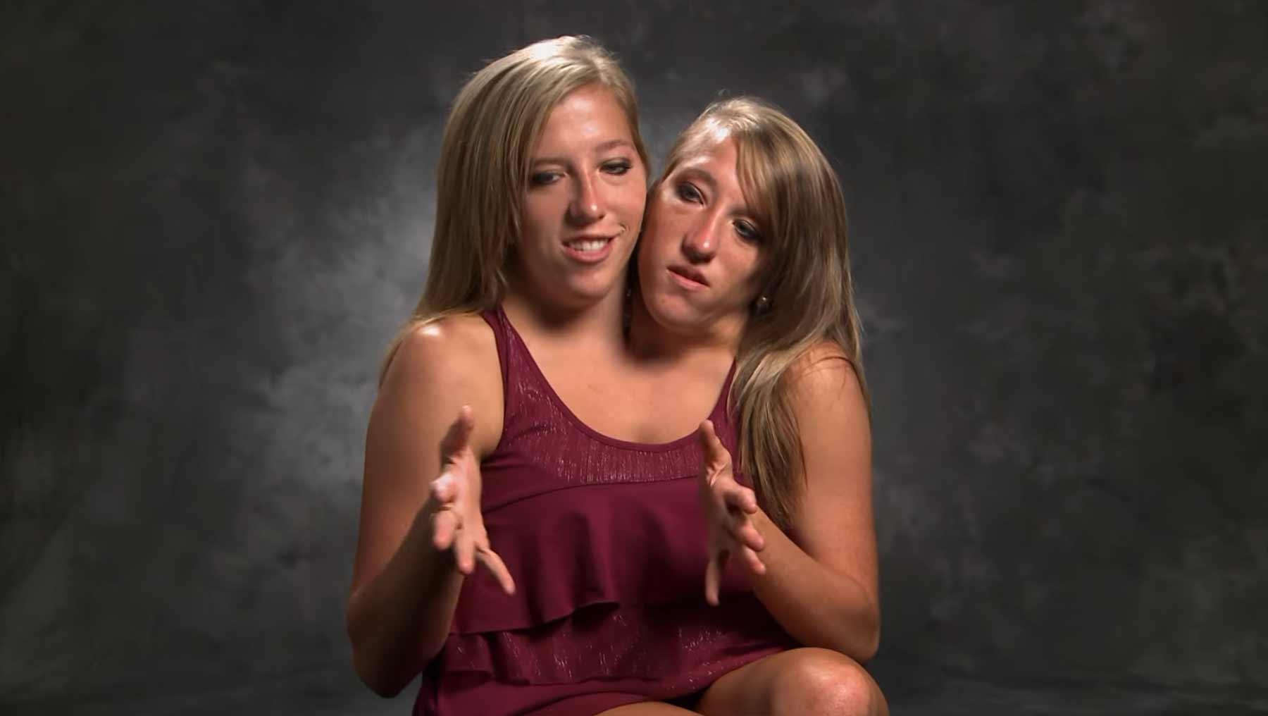 Das siamesische Zwillingspaar Abby und Britt