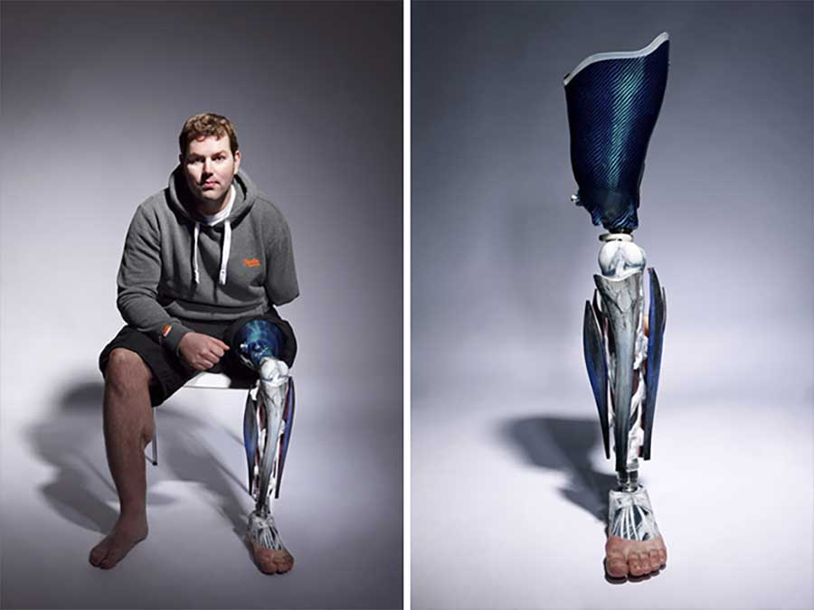 Ausgefallene Prothesen The-Alternative-Limb-Project-Sophie-de-Oliveira-Barata_08