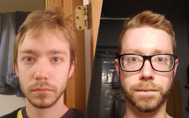 Anthony Baney hat 10 Jahre lang jeden Tag ein Selfie gemacht
