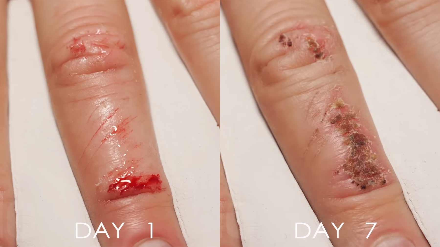 Das Heilen einer Fingerwunde im Zeitraffer-Video