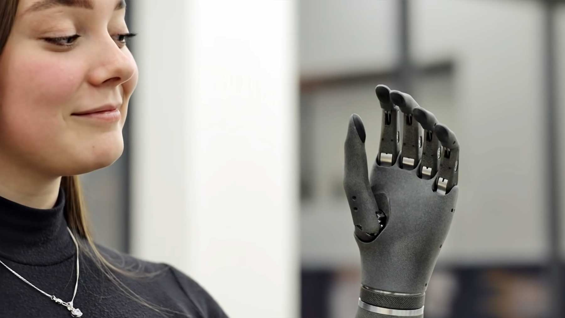 Smarte Armprothese: Esper Hand